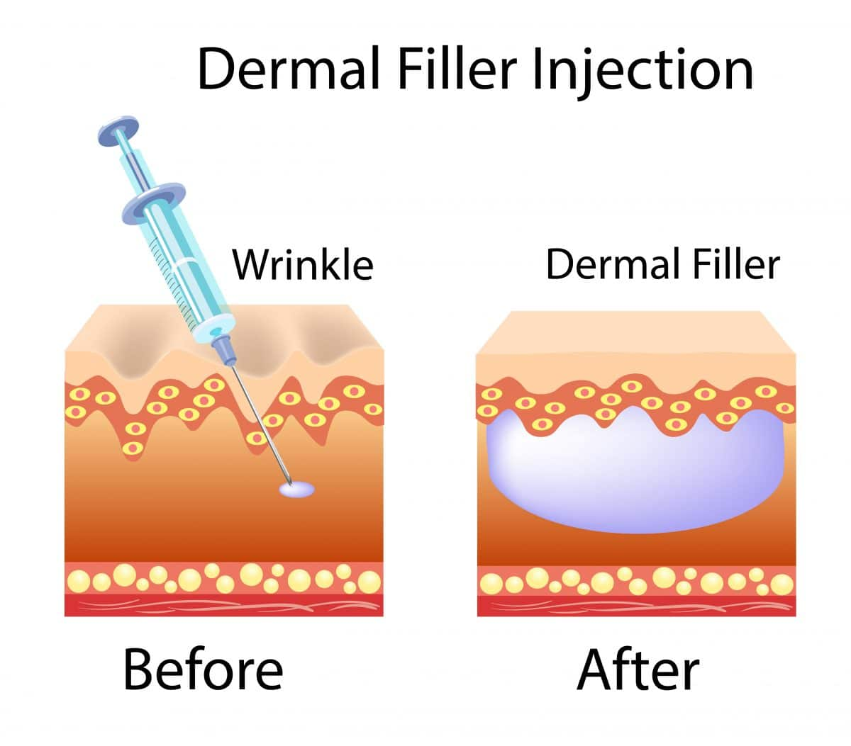 dermal fillers in south tampa