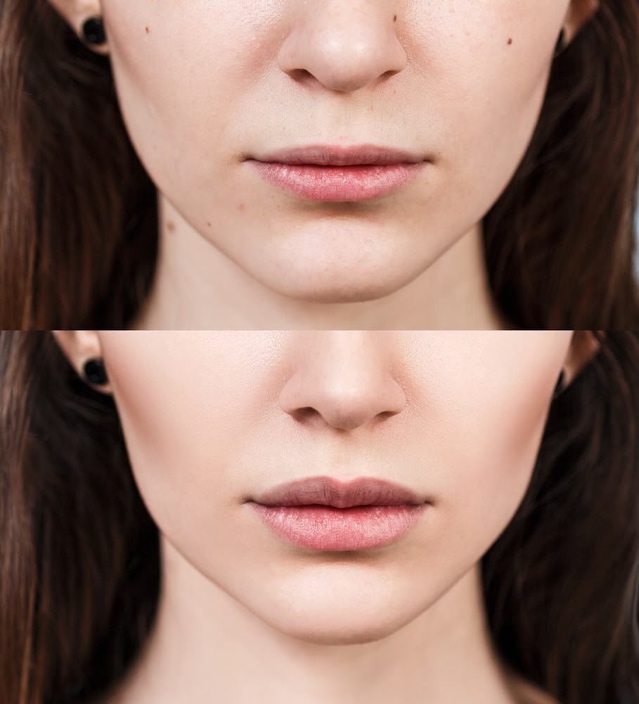juvederm dermal filler in south tampa