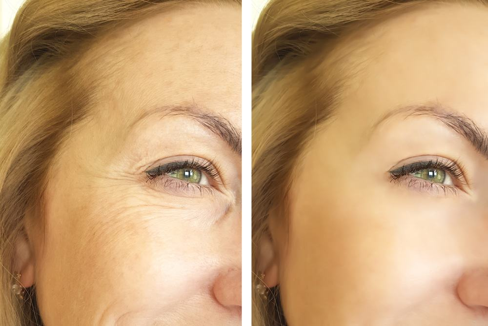 radiesse wrinkle treatment tampa