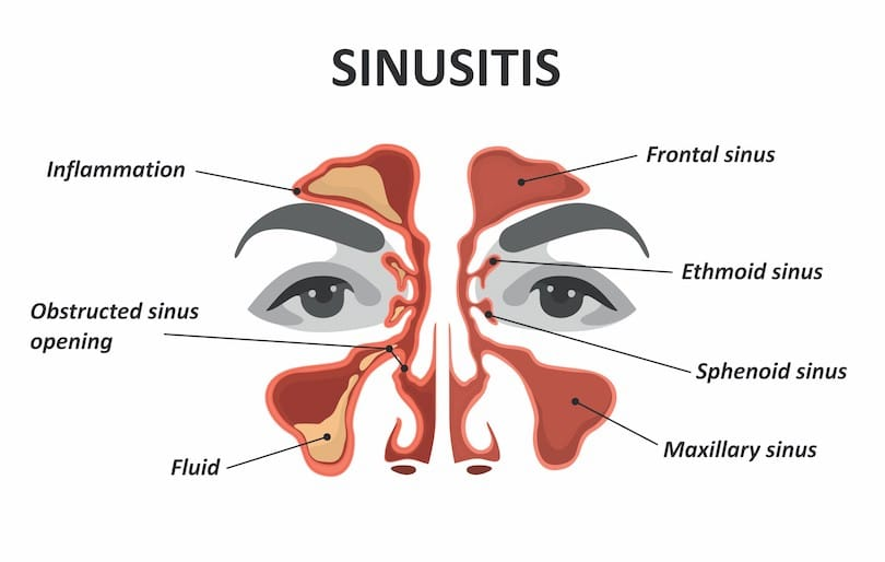 Sinusitis in Tampa