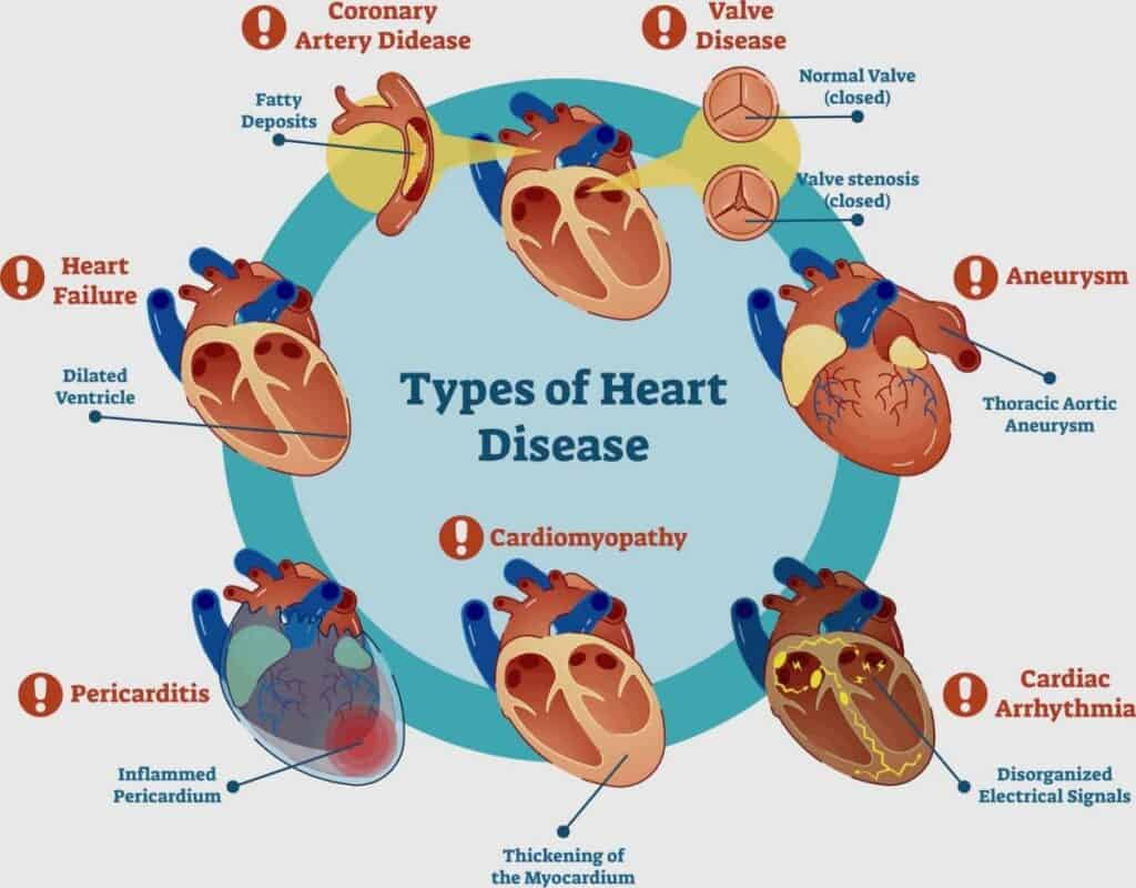 Types of Heart Disease Illustration